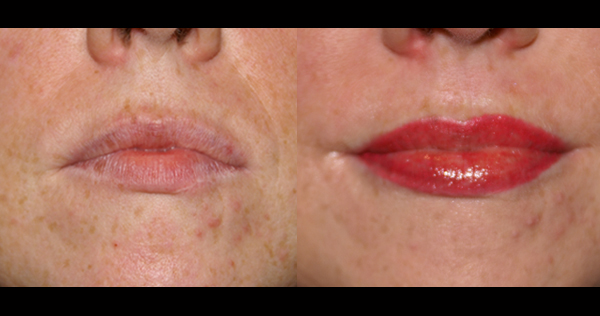 Sydney permanent make-up Brisbane facial tattoo lip tattoo